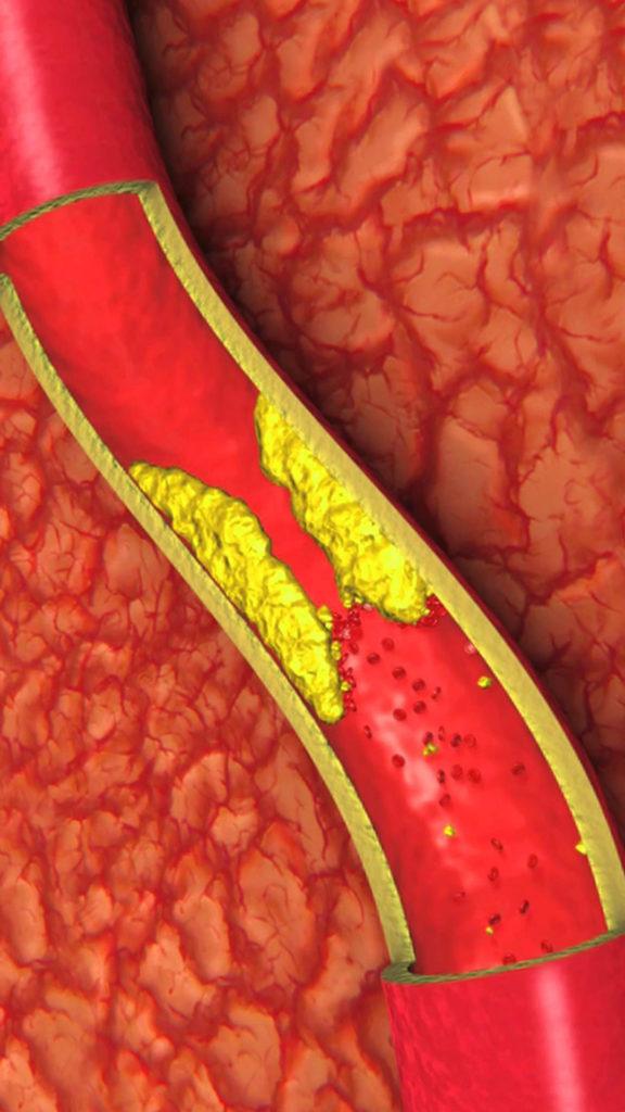 опасность появления плохого холестерина заключается в том, что мелкие жировые капли наслаиваются на внутренние стенки наших вен и артерий